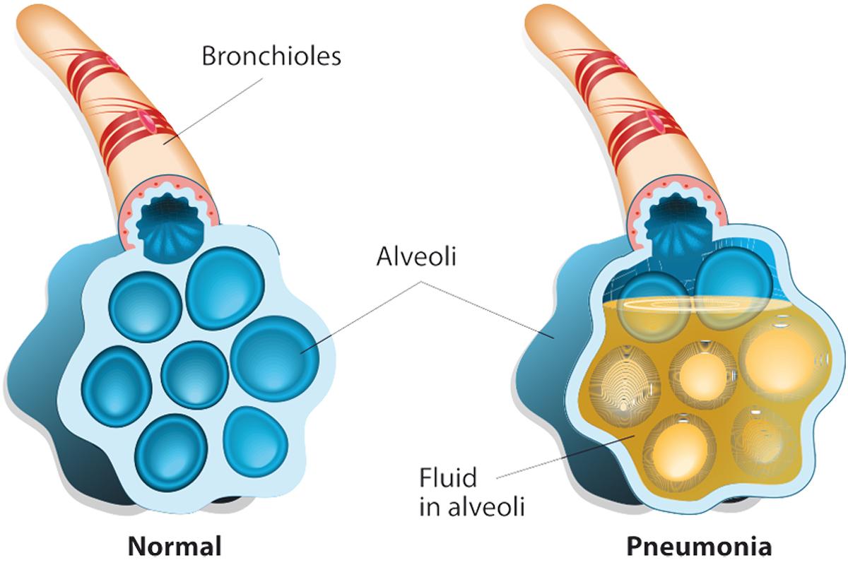 pneumonia fever treatment