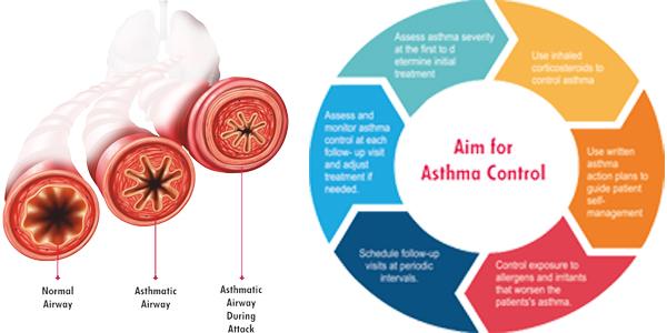 best asthma doctor in delhi