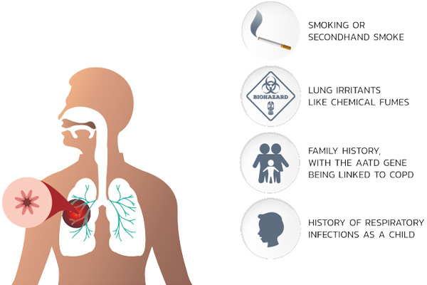 The overall approach to managing stable COPD