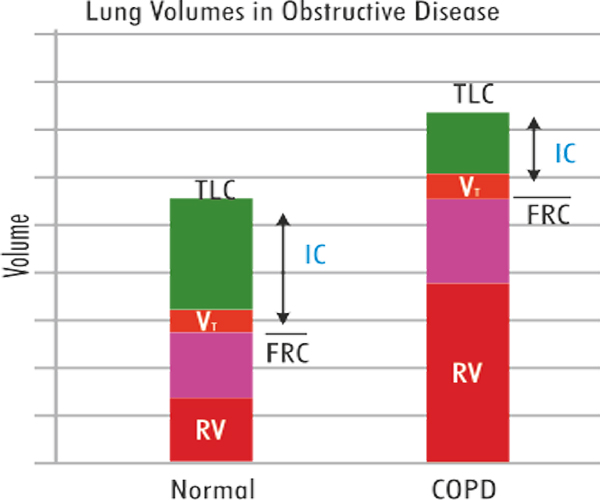 restrictive and obstructive lung disease